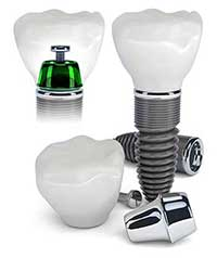 Dental Implants near Sumas