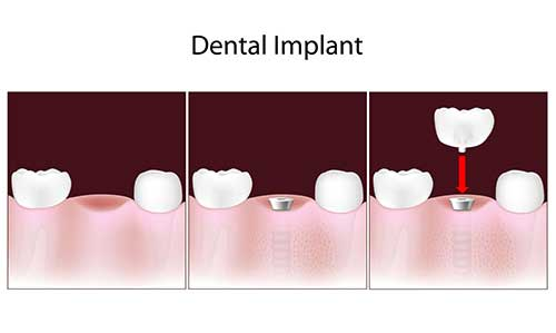 Lynden Dental Implants