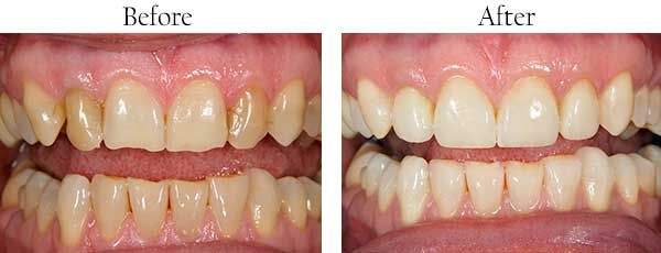 Lynden Before and After Dental Implants