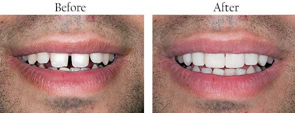 Sumas Before and After Dental Crowns